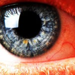 ΧΟΛΗΣΤΕΡΙΝΗ: Σημάδια στα μάτια που φανερώνουν υψηλή χοληστερόλη